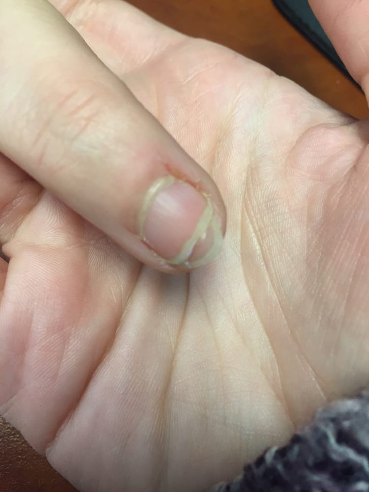 Nail coming off thanks to this place!!!!! - Yelp