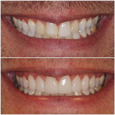 bella smiles dental las vegas