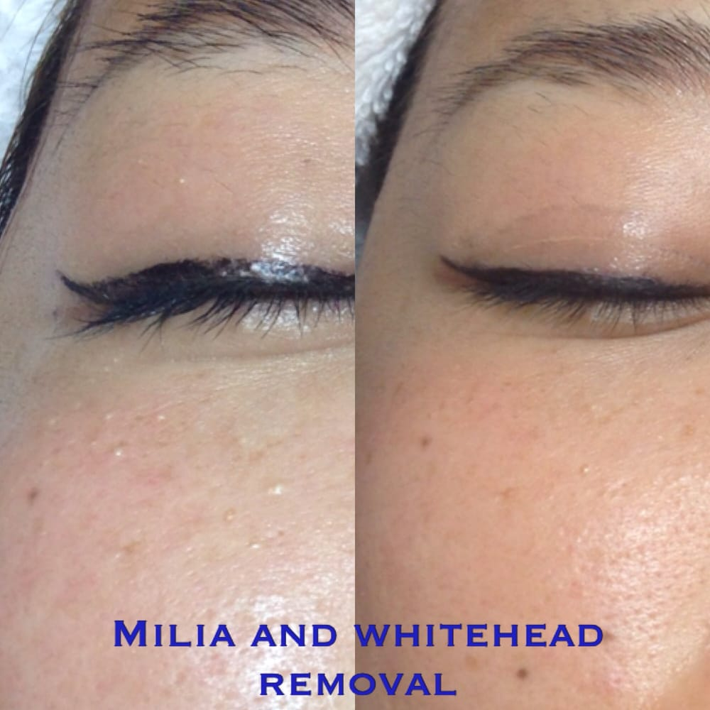 Pictures of Milia Removal - #rock-cafe