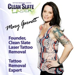 Clean Slate Laser Tattoo Removal - Staten Island - 13 Photos ...