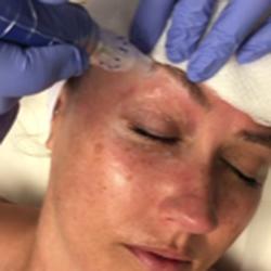 Boulder facial laser rejuvenation