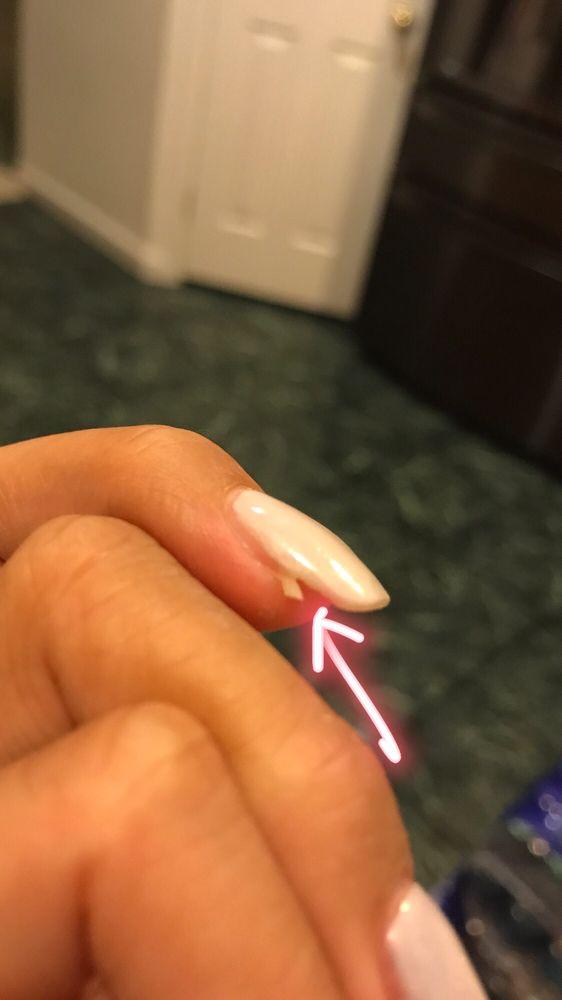Natural nail broken underneath fake nail (mismatched sizing) - Yelp