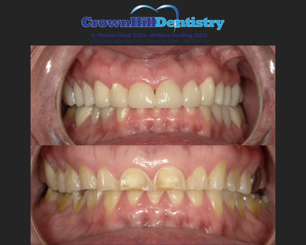 Photo of Crown Hill Dentistry: Clinton, IN