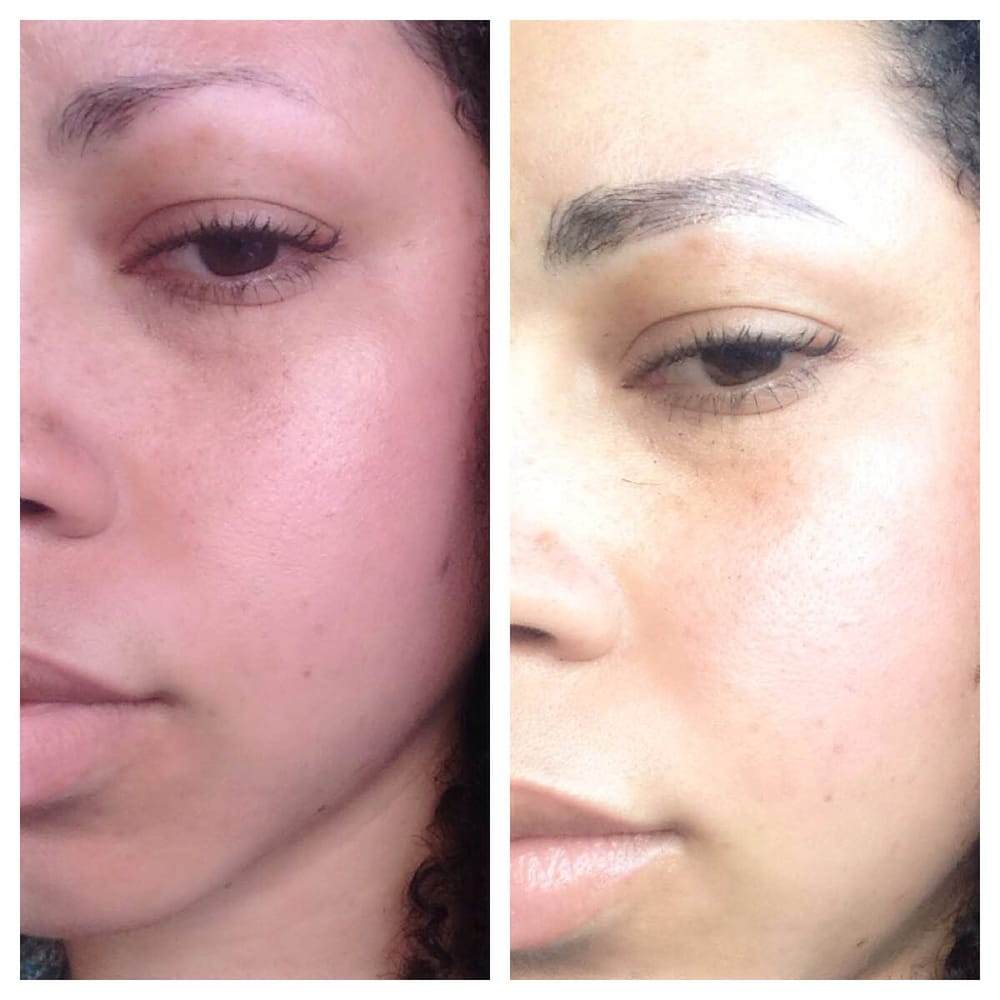 Before after semi permanent eyebrow tattoo by so young lee for Semi permanent tattoo near me