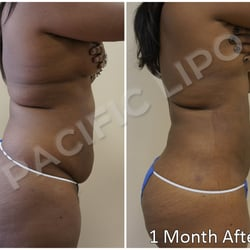 Pacific Lipo - (New) 203 Photos & 154 Reviews - Cosmetic Surgeons