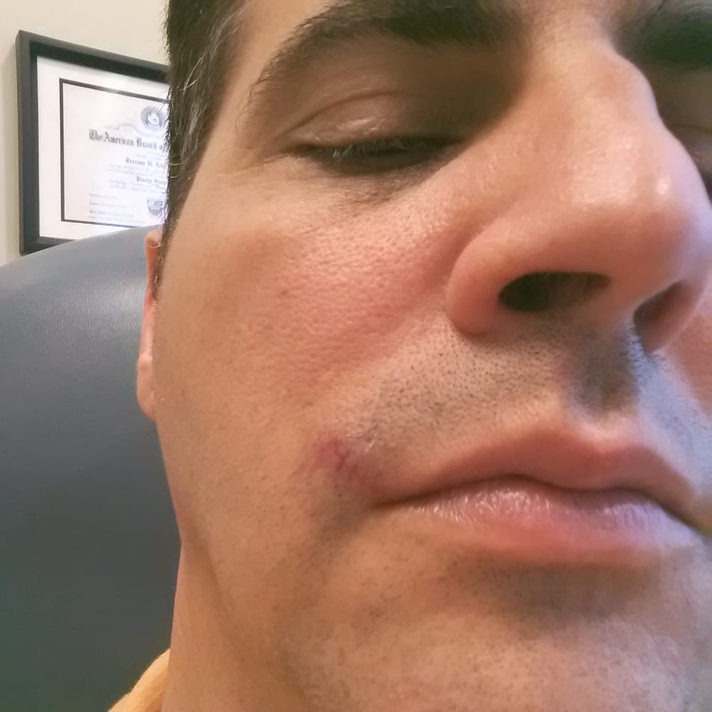 Just got stitches removed six days after surgery  - Yelp