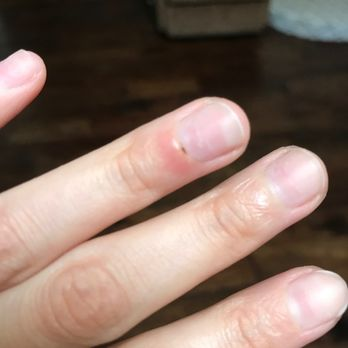 Photo Of Hillcrest Nail Spa Dallas Tx United States Sharp Edges On