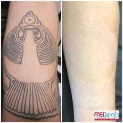 Austin texas tattoo removal » nuevenniet.eu
