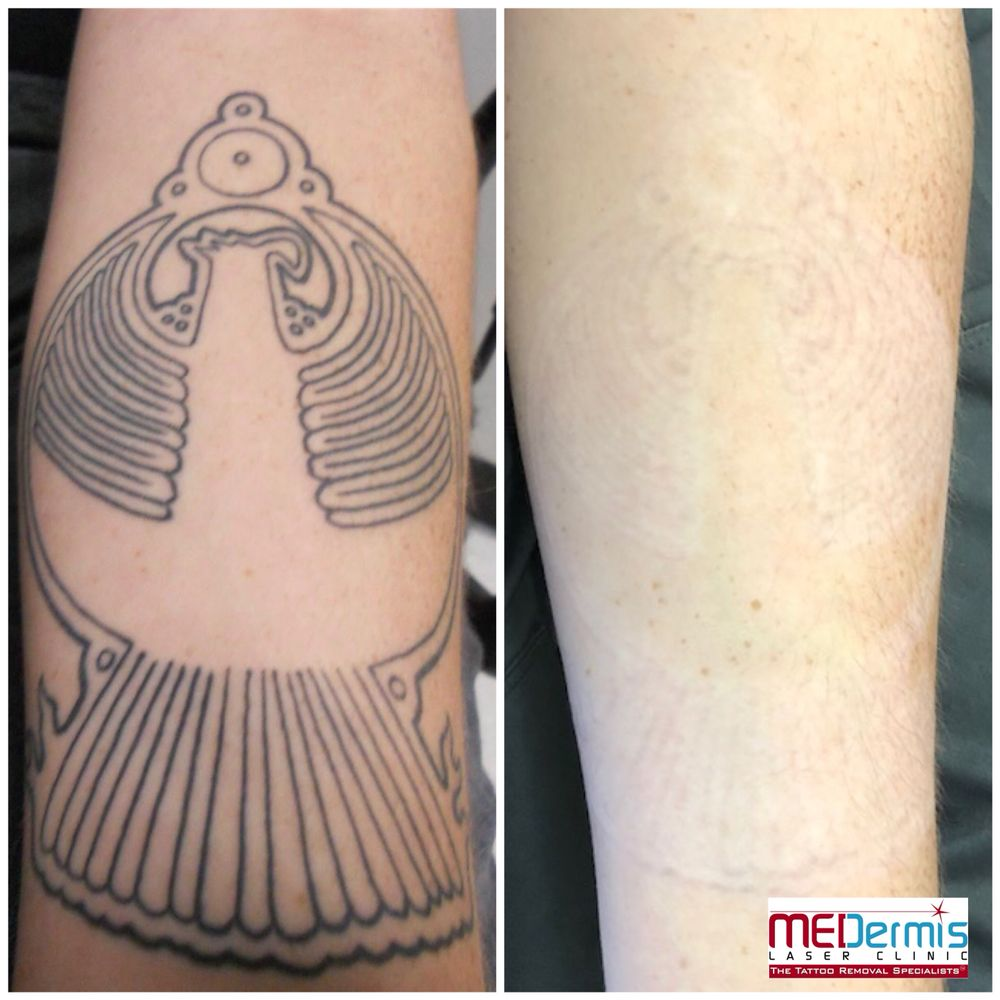 After 12 laser treatments with MEDermis Laser Clinic. - Yelp