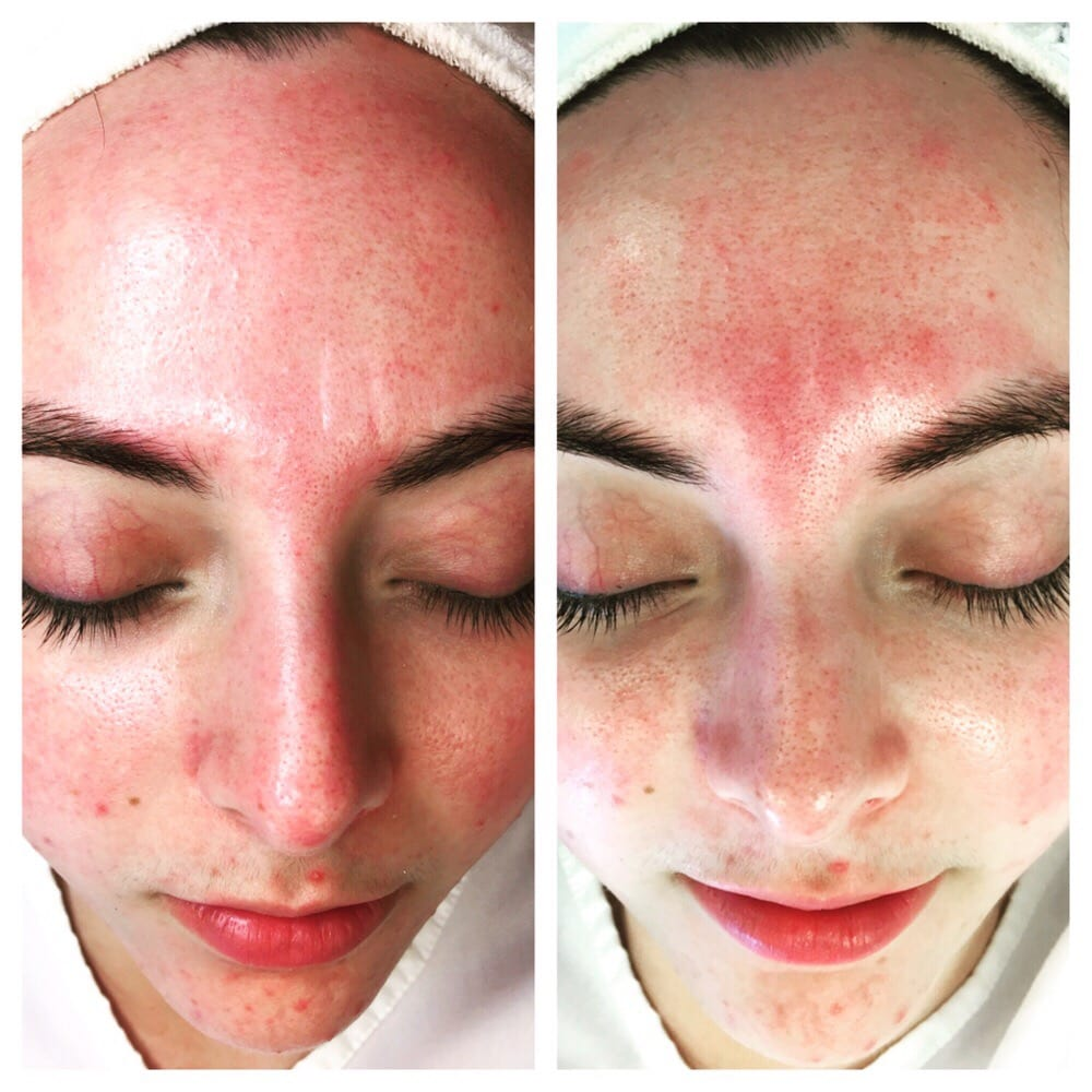 First Time Micro Current Treatment Redness And Glabella Wrinkles