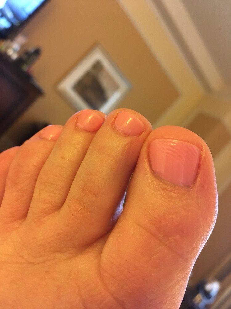 Wrinkled varnish like custard skin!! - Yelp