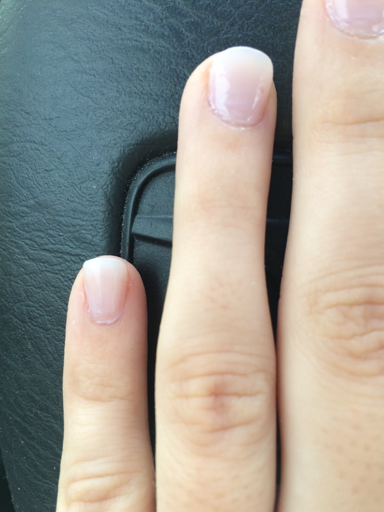 Why Do Ring Finger Nails Grow Faster