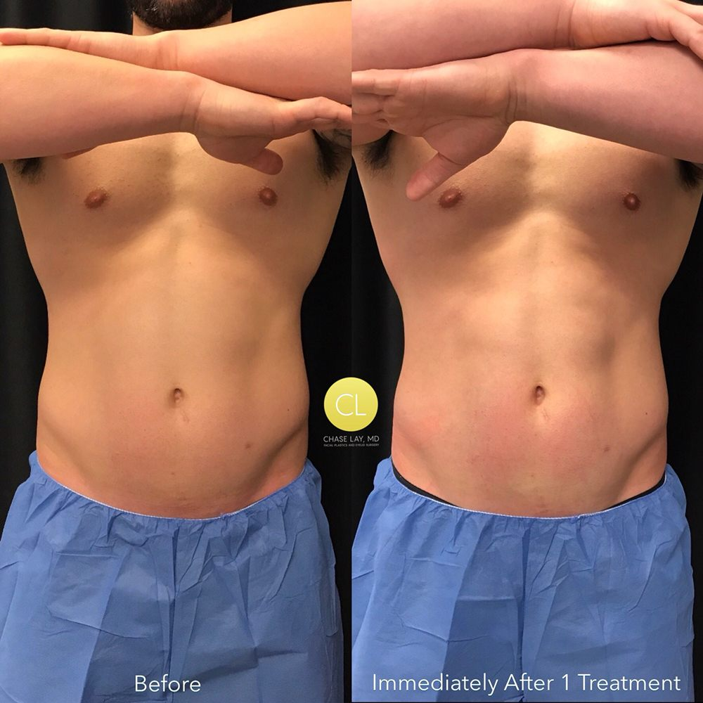Chase Lay, MD - 172 Photos & 72 Reviews - Cosmetic Surgeons - 455 O