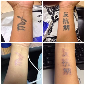 Way gone laser tattoo removal aesthetics 121 photos for How long is a tattoo removal session