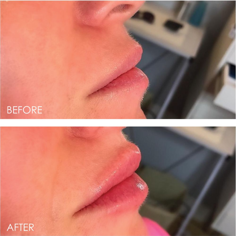 Lip Augmentation with Revanesse Versa - Yelp