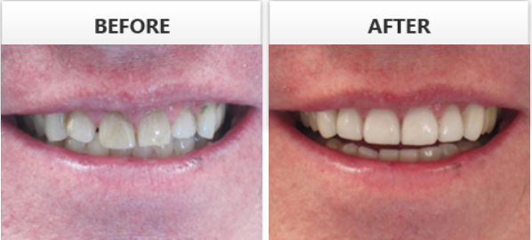 Zoom Whitening Enameloplasty Contouring Of Lower Teeth