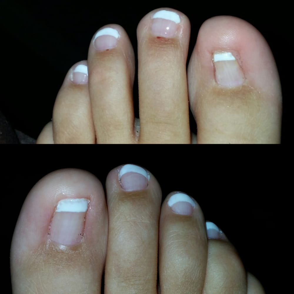 Gel french pedicure please excuse my big toes surgery for Acrylic toenails salon