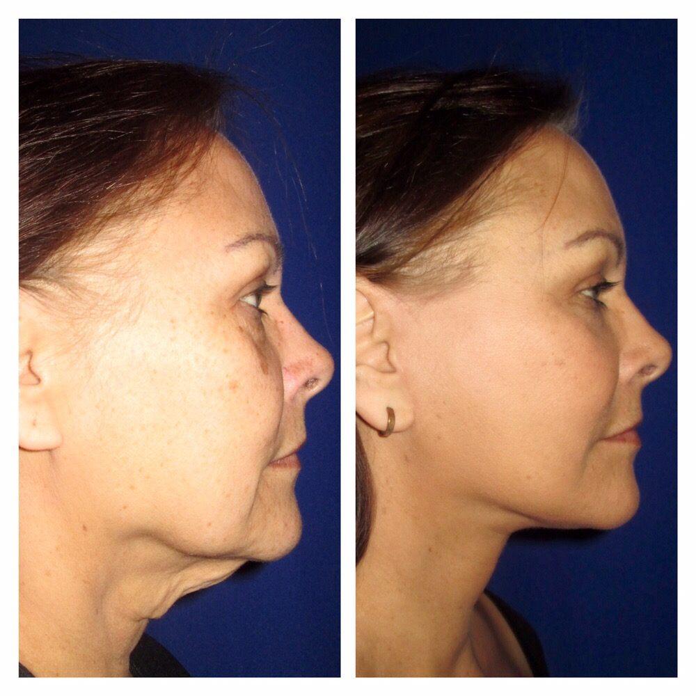 Confirm. center for facial cosmetics apologise
