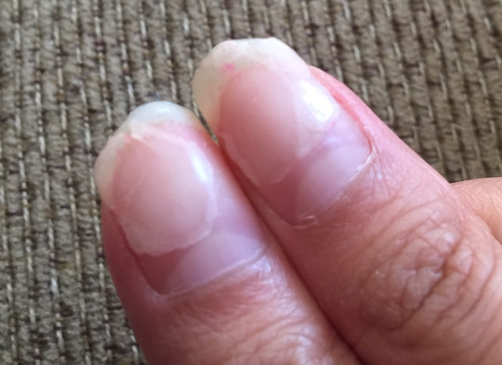 Worst manicurist ever! She thinned my nails using a machine. I had ...