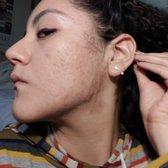 SKINutritious Holistic Acne Clinic - 37 Photos & 69 Reviews