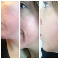 Photo Of Makeup Artists Choice Hampstead Md United States Acne Scars Before