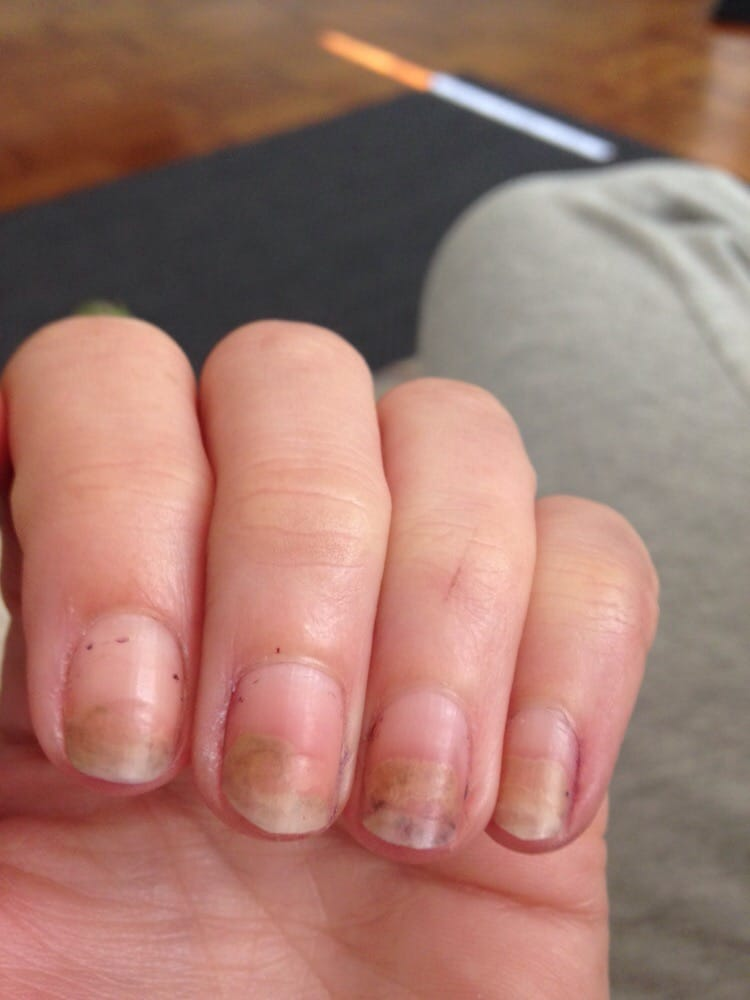 nail infection caused by this salon - Yelp