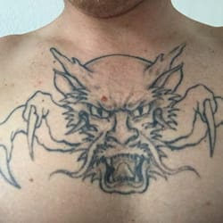 Skin Tattoo Removal - San Jose, CA, United States. This is the tattoo ...